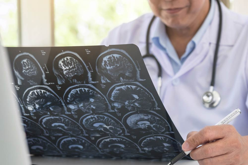 Dr. Leonardo Miguez | Laser E Neurocirurgia