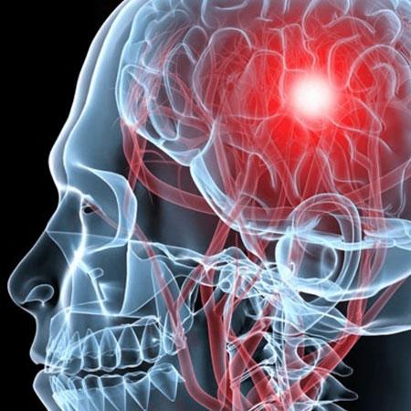 Dr. Leonardo Miguez | Aneurisma Cerebral
