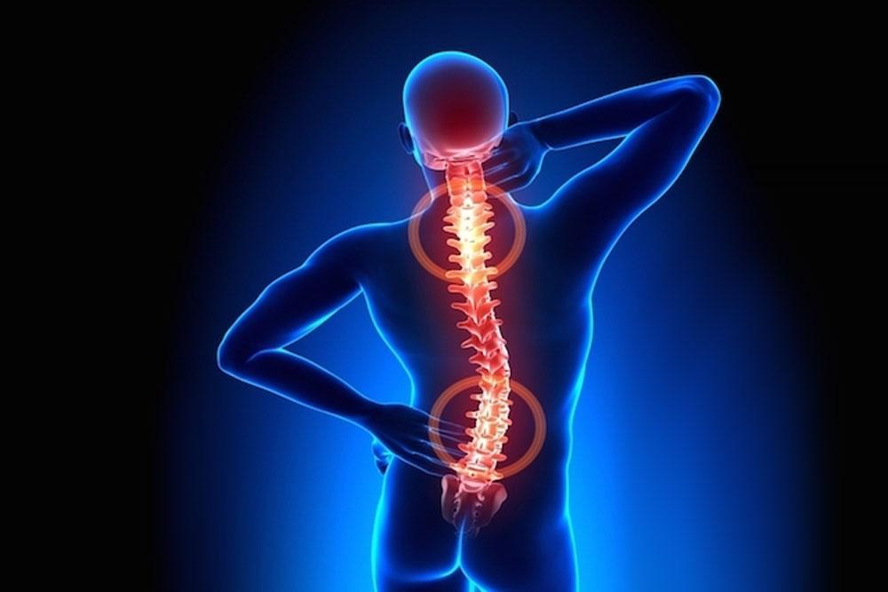 Dr. Leonardo Miguez | Artrodese Facetária