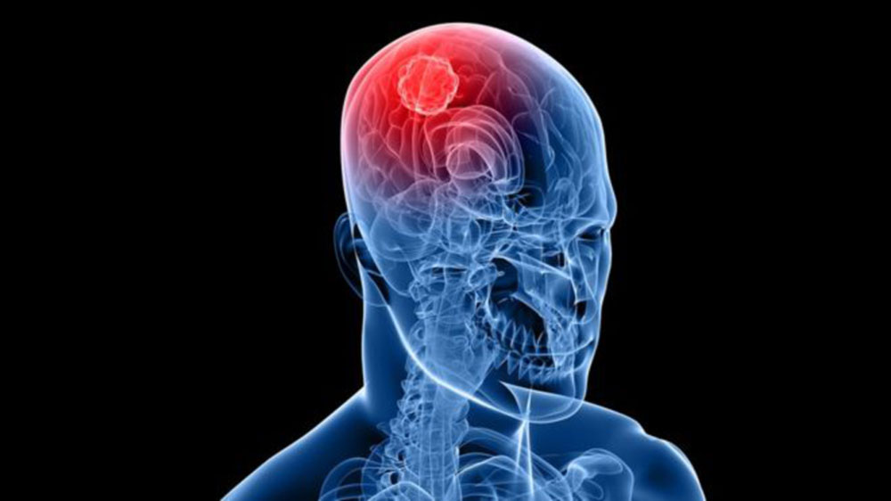 Dr. Leonardo Miguez | Cirurgia Tumores Cerebrais