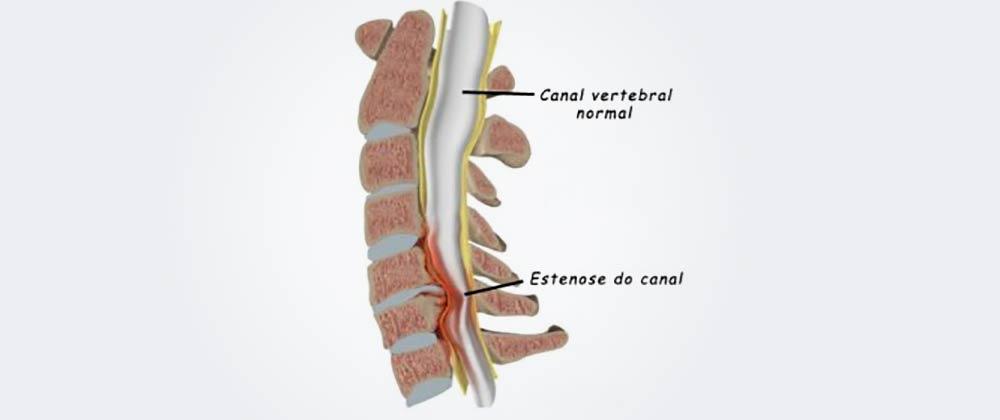 Dr. Leonardo Miguez | Estenose do Canal