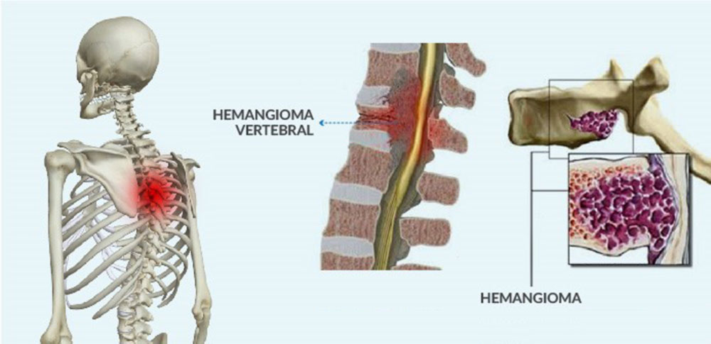 Dr. Leonardo Miguez | Hemangioma