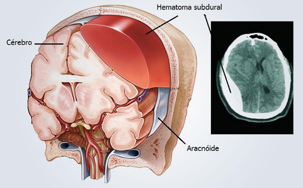Dr. Leonardo Miguez | Hematoma Subdural