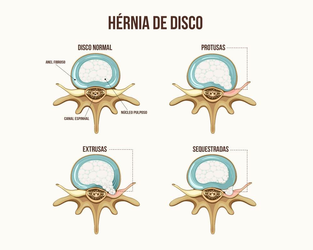 Dr. Leonardo Miguez | Hérnia de Disco