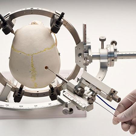 Dr. Leonardo Miguez | Neuronavegação Estereotáxica Computadorizada