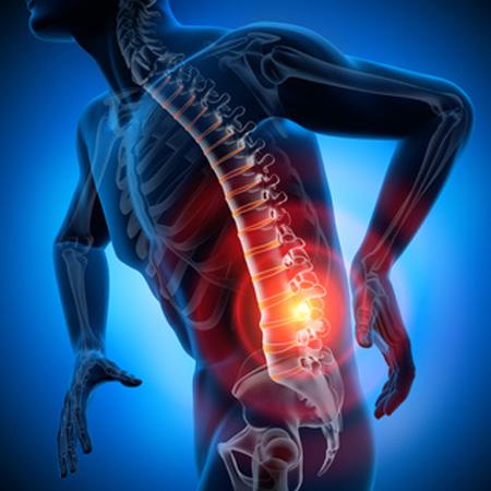 Dr. Leonardo Miguez | Osteofitos (Bico De Papagaio)