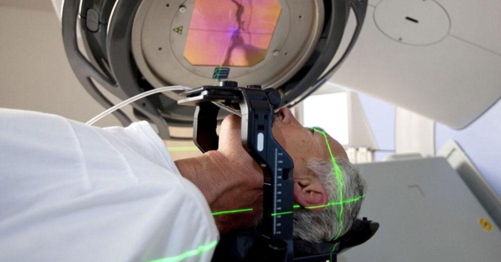 Dr. Leonardo Miguez | Radiocirurgia Estereotáxica