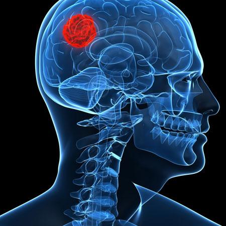 Dr. Leonardo Miguez | Tumores Cerebrais