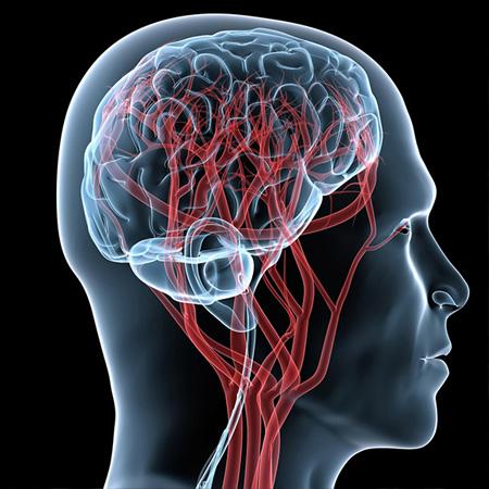 Dr. Leonardo Miguez | Vascular (Aneurismas, Malformações, Cavernomas)
